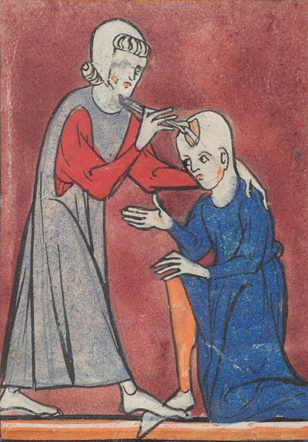 A Depiction Of Medieval Brain Surgery Early 14th C BL Sloane 1997 Fo 2r